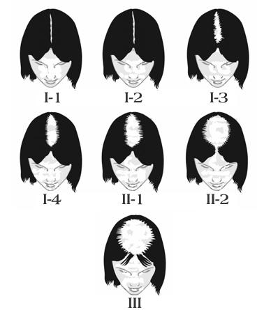 El análisis ttg a la caída de los cabello