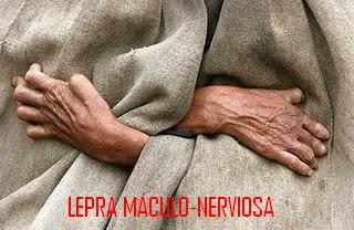 lepra nerviosa