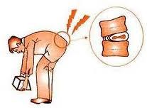 El dolor en los músculos de la espalda del ungüento