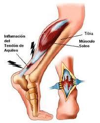 Los pinchazos del dolor en sheyno el departamento de pecho de la columna vertebral